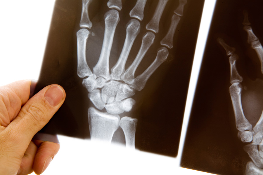 Pittsburgh Urgent Care xrays